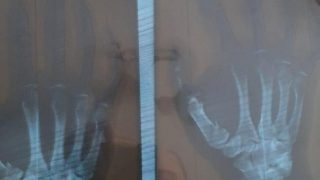 radiografie-baciu
